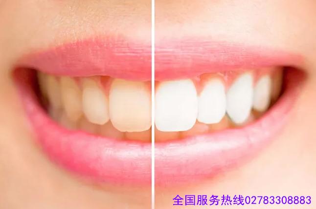 长沙芙蓉区洗牙需要多少钱?哪种洁牙方式比较好?
